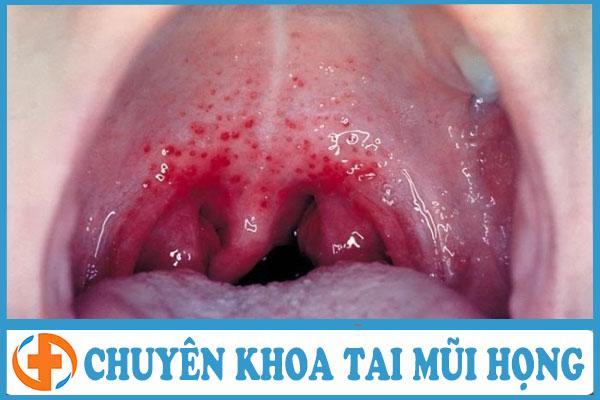 Biến chứng xa do bệnh viêm họng gây ra