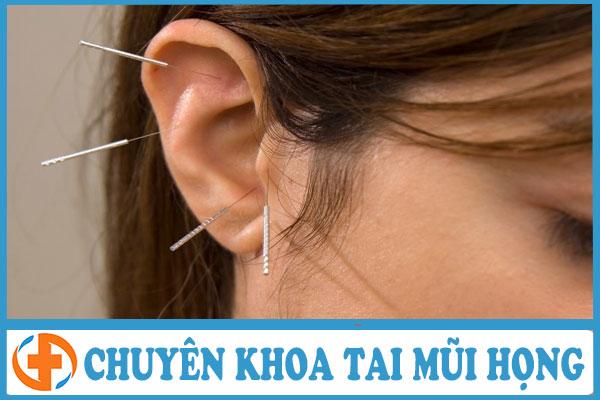 phuong phap cham cuu ho tro dieu tri benh viem tai giua